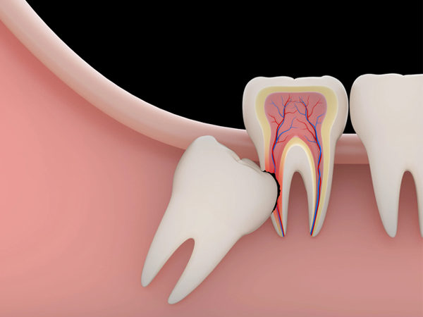 Painless Tooth Extractions And Disimpactions